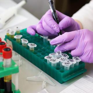 Coronavirus, ancora 7 decessi in Piemonte, ma 141 i pazienti guariti