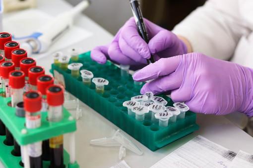 Coronavirus, in Piemonte calano ancora i nuovi casi positivi e i ricoveri in ospedale