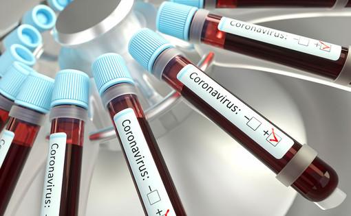Coronavirus: nessun decesso nella giornata di oggi, ma si contano altri 25 pazienti guariti